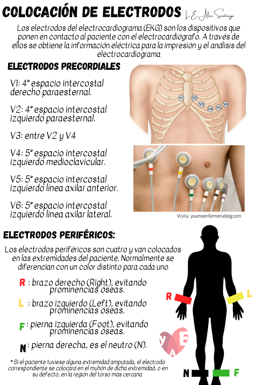 Colocación De Electrodos Ecg Ekg